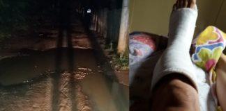 Mulher quebra o pé em rua emburacada de Jacarandá