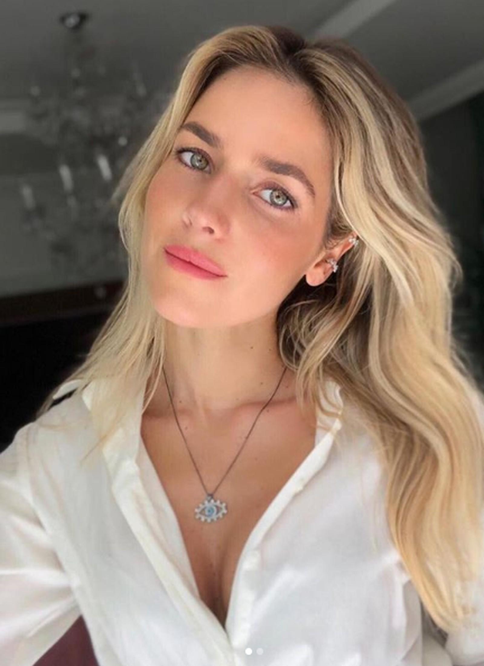 Monique Alfradique exibe resultado de cirurgia plástica no nariz; veja antes e depois